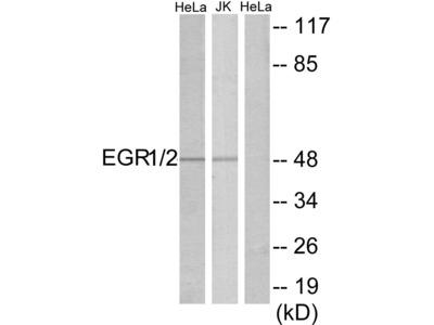 EGR1/EGR2 Polyclonal Antibody