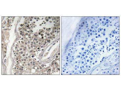 RAB3GAP1 Polyclonal Antibody