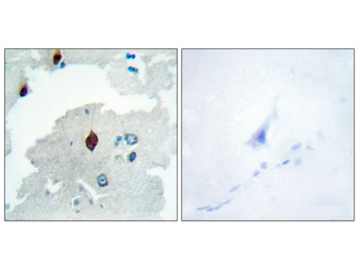 PTTG Polyclonal Antibody