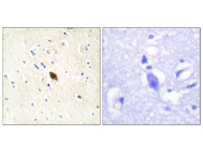 Phospho-DNA-PK (Ser2612) Polyclonal Antibody