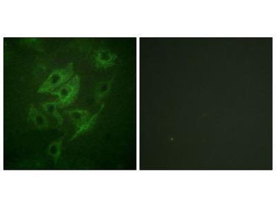 NMDAR2A/NMDAR2B Polyclonal Antibody