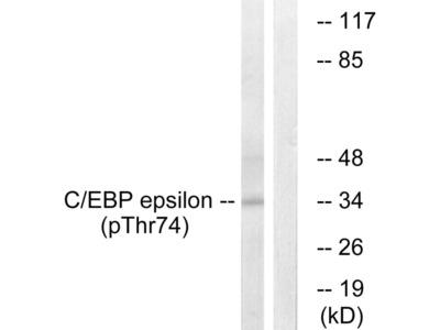Phospho-C/EBP epsilon (Thr74) Polyclonal Antibody