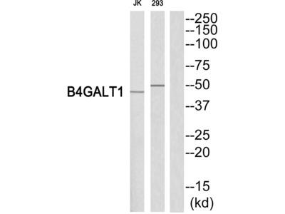 B4GALT1 Polyclonal Antibody