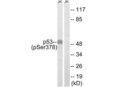 Phospho-p53 (Ser378) Polyclonal Antibody