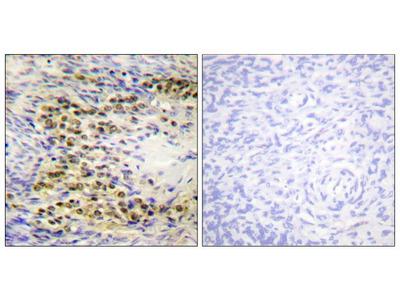 Phospho-AKT1 (Thr72) Polyclonal Antibody