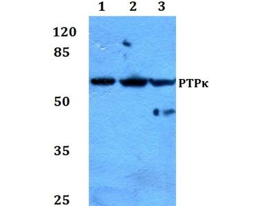 PTPRK Polyclonal Antibody