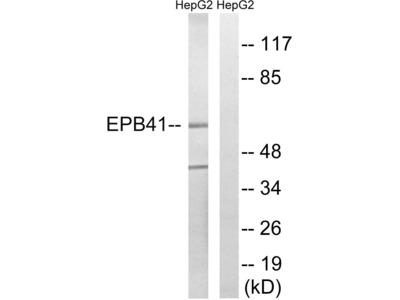 EPB41 Polyclonal Antibody