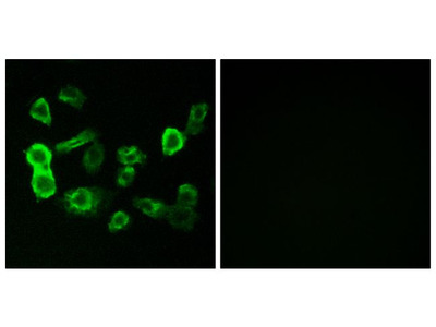 OR5P2 Polyclonal Antibody