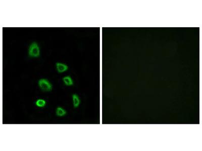 OR5K1 Polyclonal Antibody