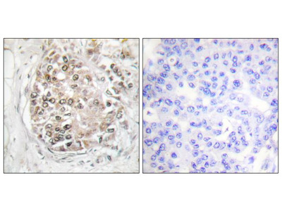 Phospho-DNA-PK (Ser2056) Polyclonal Antibody
