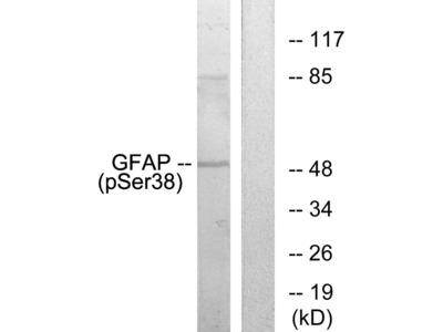 Phospho-GFAP (Ser38) Polyclonal Antibody