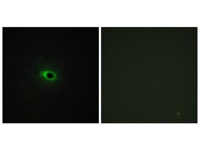 COL12A1 Polyclonal Antibody