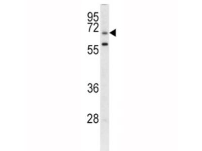 GARP Antibody