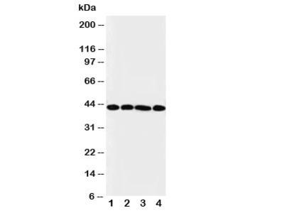 IL3RA Antibody
