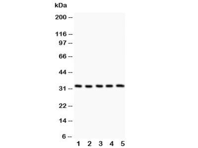 HSD11B1 Antibody