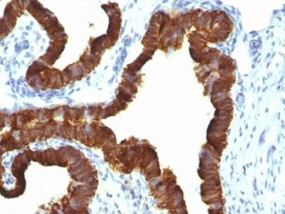 Cytokeratin 7 Antibody / CK7 (Mouse Monoclonal)