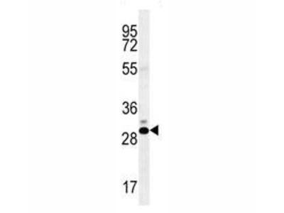 CT45A Antibody