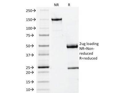 Beta-2 Microglobulin Antibody (Mouse Monoclonal)