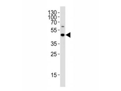 C9orf72 Antibody
