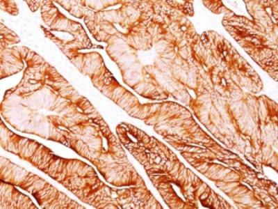 Cytokeratin 5 + 8 Antibody (Mouse Monoclonal)