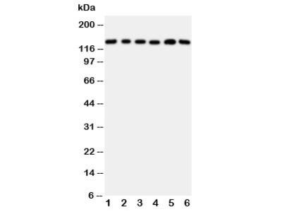 Thrombospondin 2 Antibody