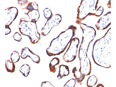 HCG-beta Antibody (Mouse Monoclonal)