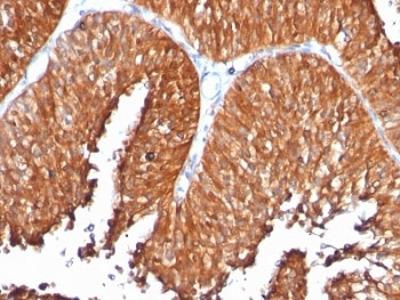 HSP60 Antibody (Mouse Monoclonal)