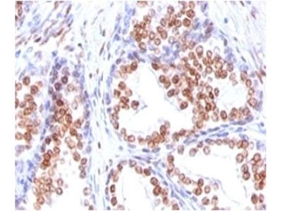 Androgen Receptor Antibody (Mouse Monoclonal)