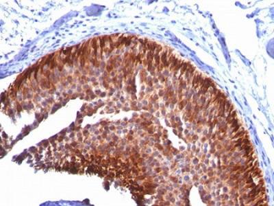 Cytokeratin 17 Antibody (KRT17) (Mouse Monoclonal)