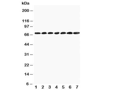 SMARCB1 Antibody (BAF47)