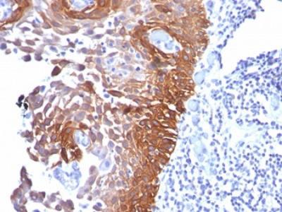 Cytokeratin 17 Antibody (Mouse Monoclonal)