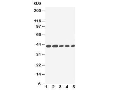 IL-2 Receptor Antibody (gamma subunit)
