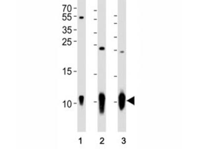 S100B Antibody