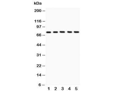 12 Lipoxygenase Antibody