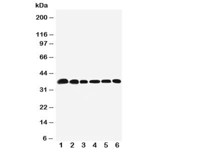 Nucleophosmin Antibody (NPM1)