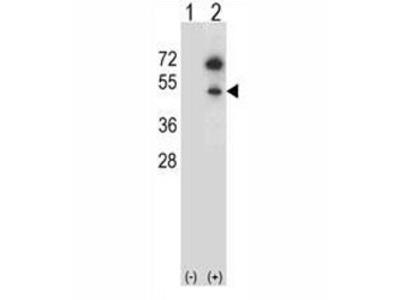 GNAS Antibody (G protein alpha S)