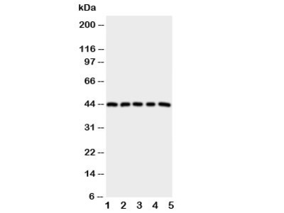 PGE Receptor Antibody, EP1 subtype