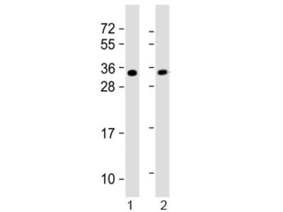 SLUG Antibody (SNAI2)