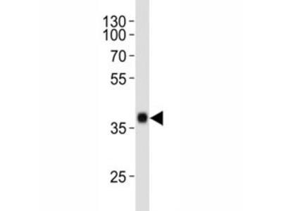 SOX2 Antibody (Mouse Monoclonal)