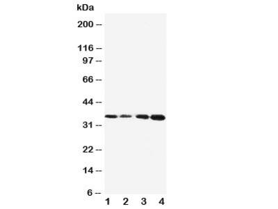 Protein C Antibody