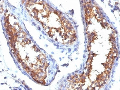 CD99 Antibody (Mouse Monoclonal)