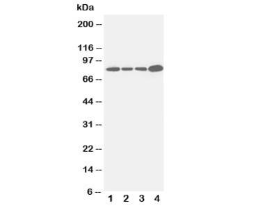 Integrin beta 3 Antibody