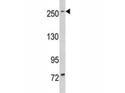 LRRK1 Antibody