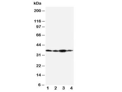 Podoplanin Antibody gp36