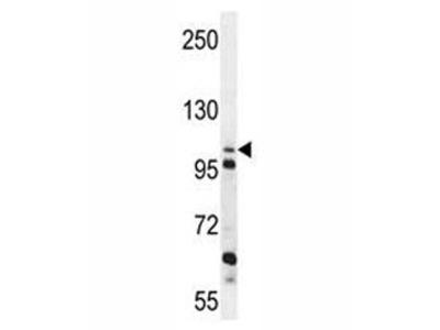 ZGRF1 Antibody