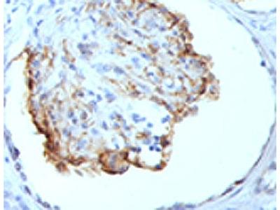 WT1 Antibody (Mouse Monoclonal)