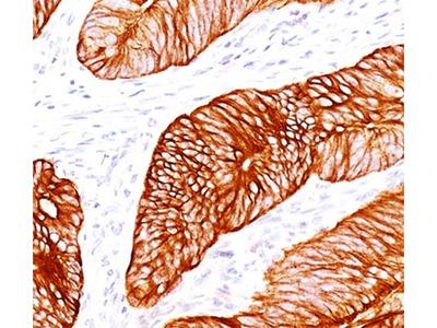 Cytokeratin 8 Antibody Cocktail (Mouse Monoclonal)
