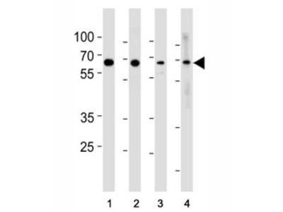 p65 Antibody (RELA)