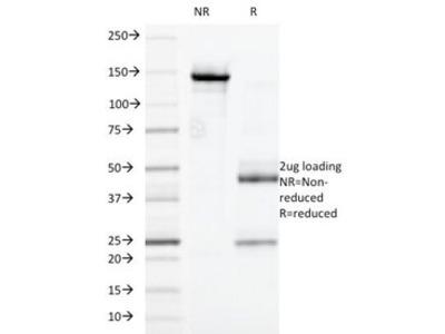 CD32 Antibody (Mouse Monoclonal)