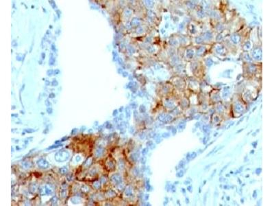 TRIM29 Antibody (Mouse Monoclonal)